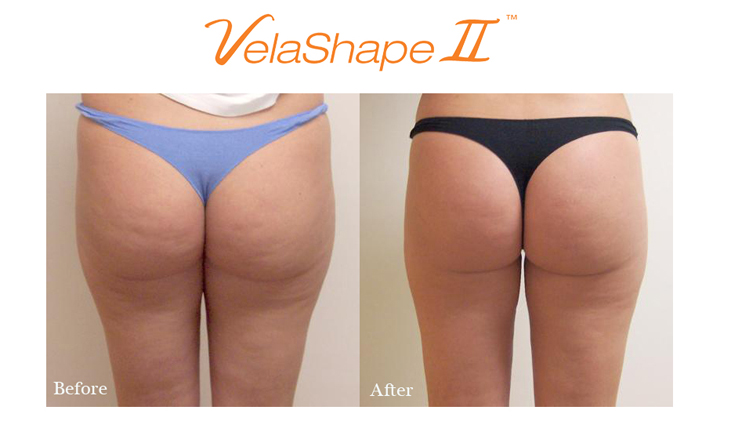 velashape-before-and-after-butt-a